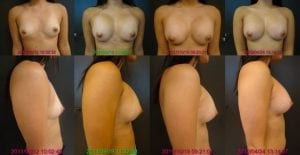 Saline Breast Implant Settling Sequence