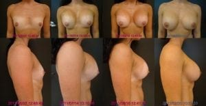Silicone Breast Implant Settling Sequence