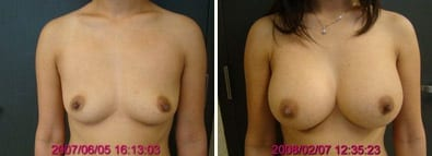 Breasts Close Together Before and After Augmentation
