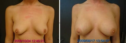 Breasts Far Apart Before and After Augmentation