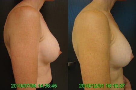 Before and After Breast Implant Replacement Side View