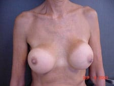 Implants Placed Above Muscle with Capsular Contracture