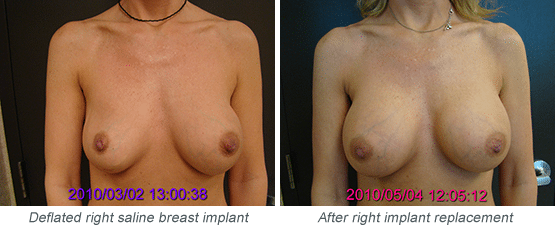 Patient with Deflated Saline Implant and After Rplacement