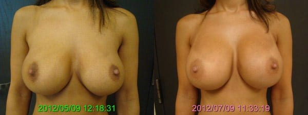 Before and After Breast Revision Front View
