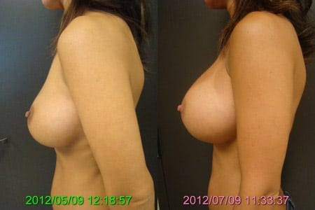 Before and After Breast Revision Side View