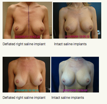 Patient with Deflated Saline Implant and After Revision Surgery