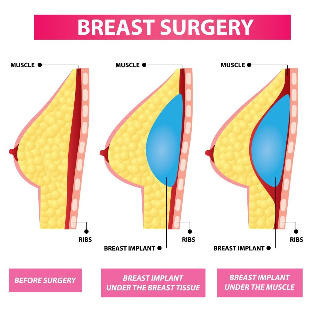Diagram of Breast Implant Placement Options