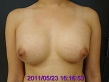 After Breast Augmentation with Silicone Implants