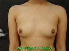 Before Breast Augmentation with Silicone Implants
