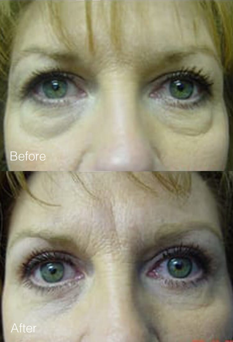 Eyelid Lift Surgery - Before & After