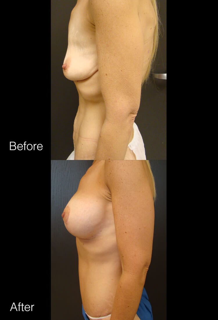 Body Contouring After Weight Loss - Before & After