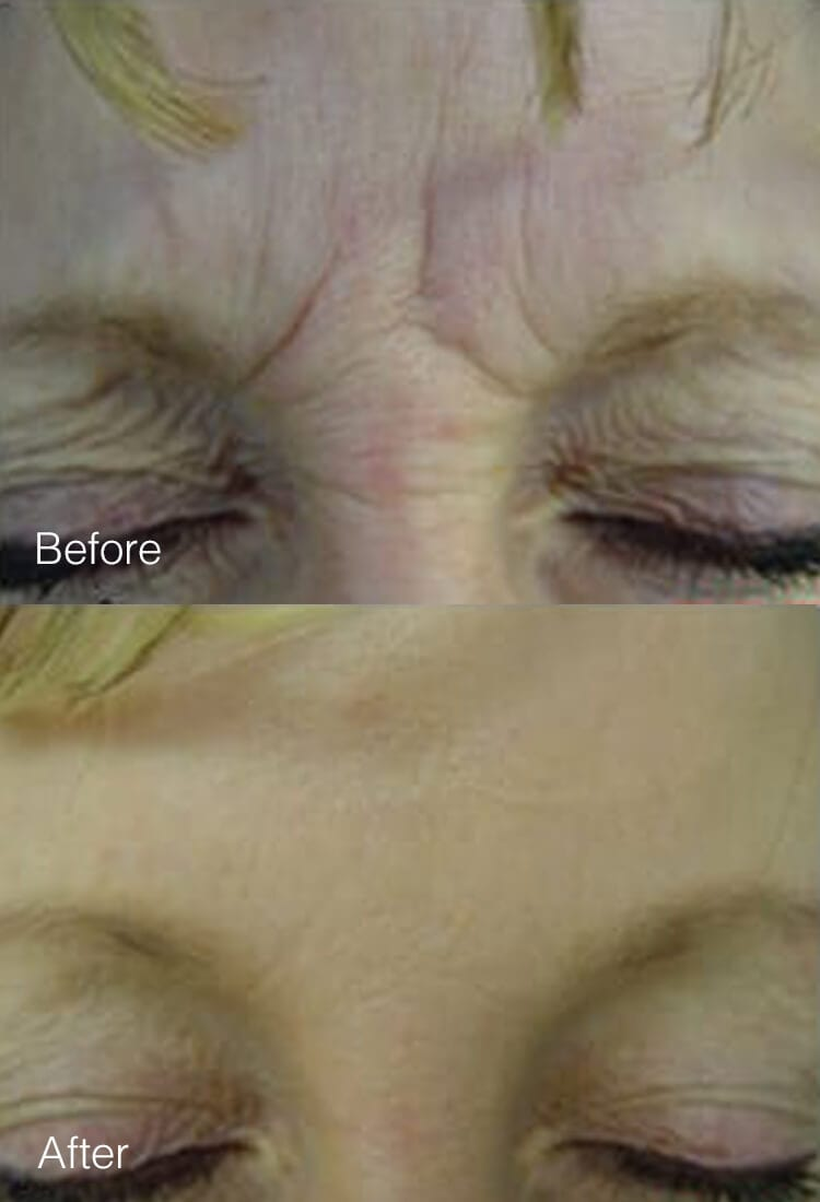 Botox Cosmetic and Dysport Treatment - Before & After