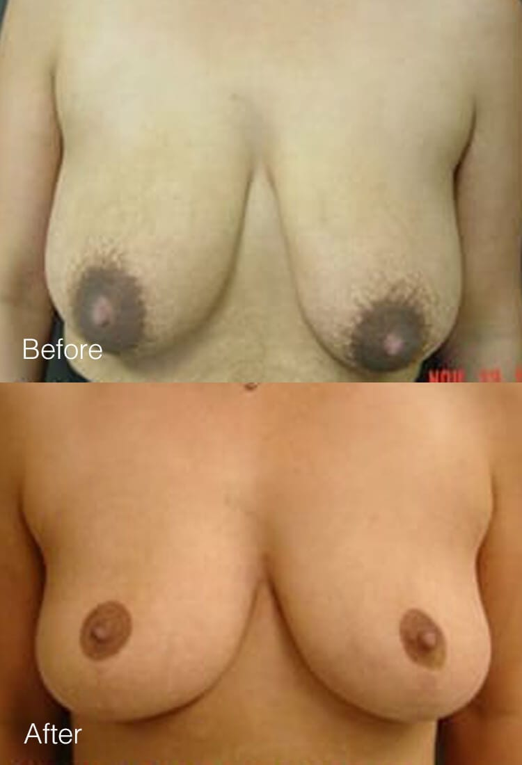 Breast lift - Before & After