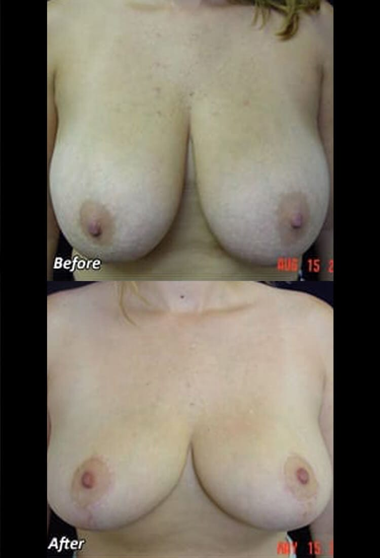 Breast reduction - Before & After