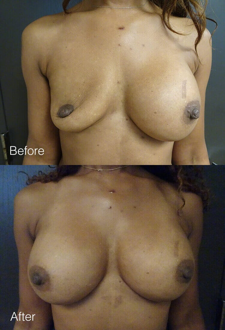 Breast implant revision - Before & After