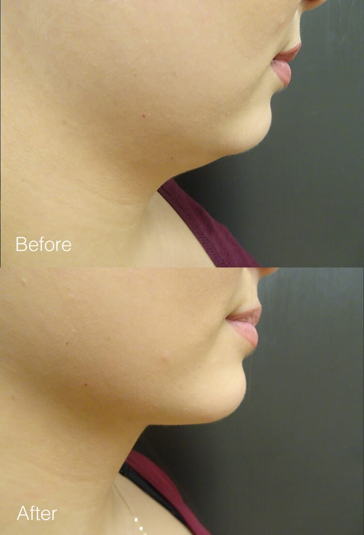Chin Liposuction - Before & After