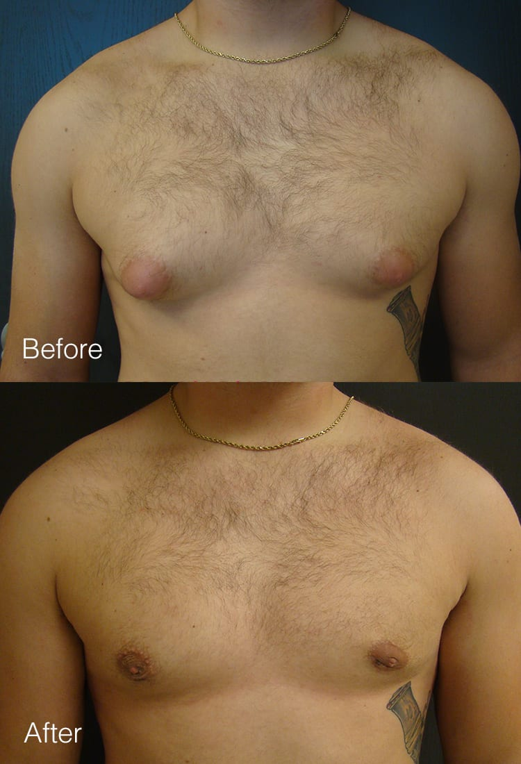 Male Breast Reduction - Before & After