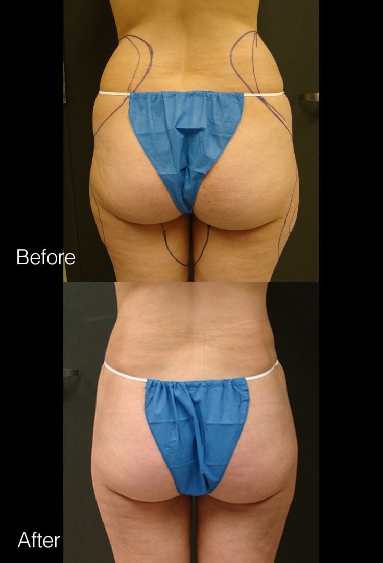 Liposuction - Before & After