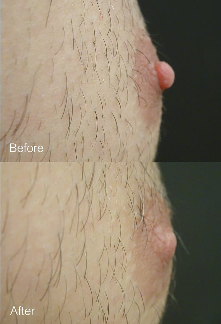 Male Nipple Reduction - Before & After