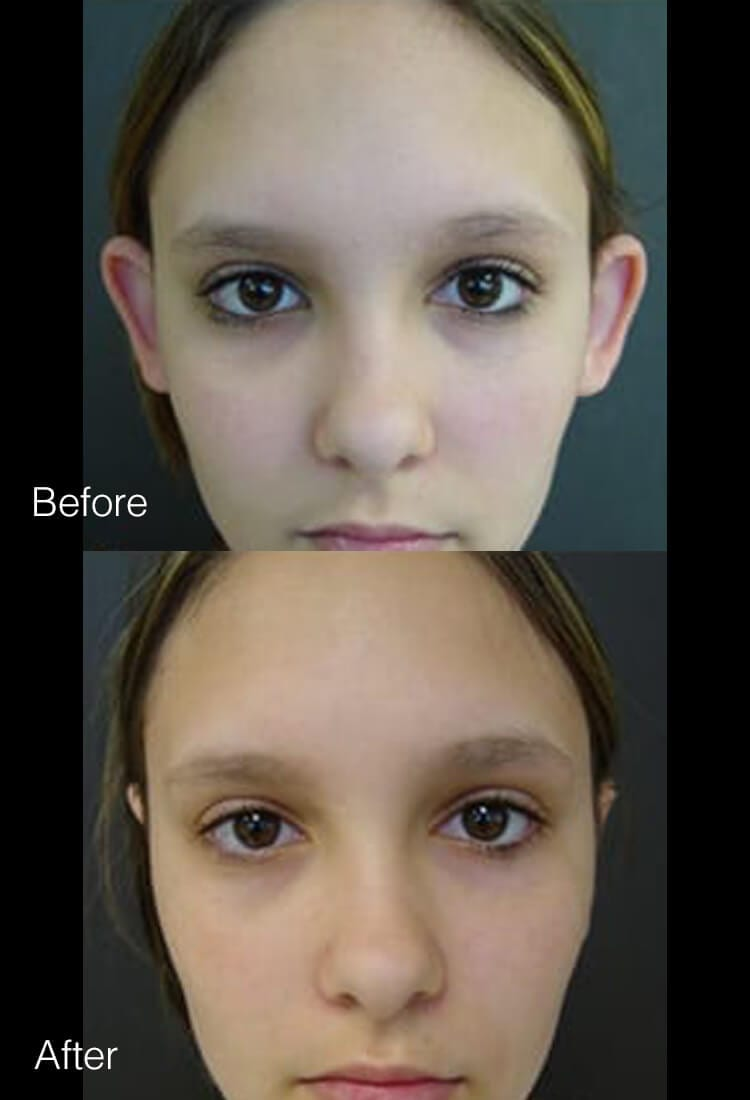Otoplasty - Before & After