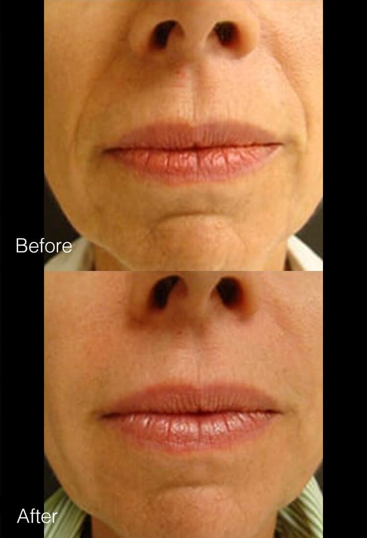 Restylane & Juvederm - Before & After