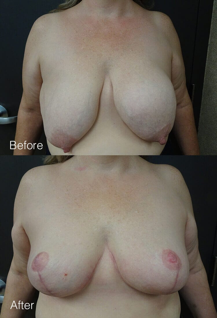 Breast implant removal - Before & After