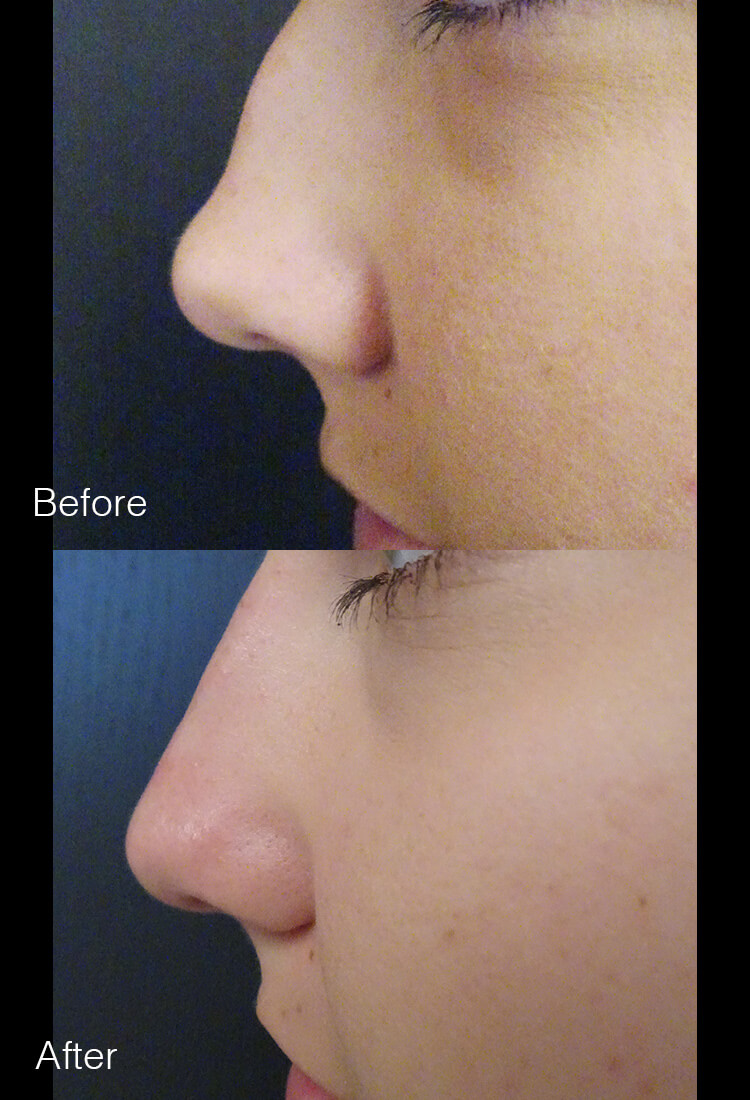 Nonsurgical Rhinoplasty - Before & After