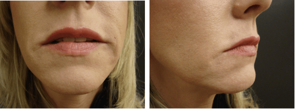 Patient after receiving Restylane facial filler