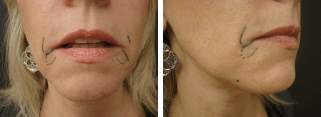 Patient before receiving Restylane facial filler