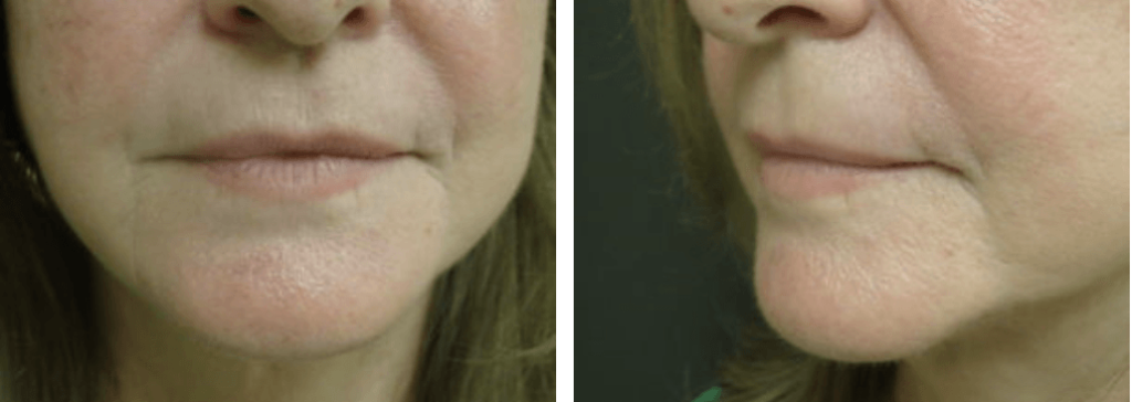 Patient's face after receiving Restylane® injectable filler
