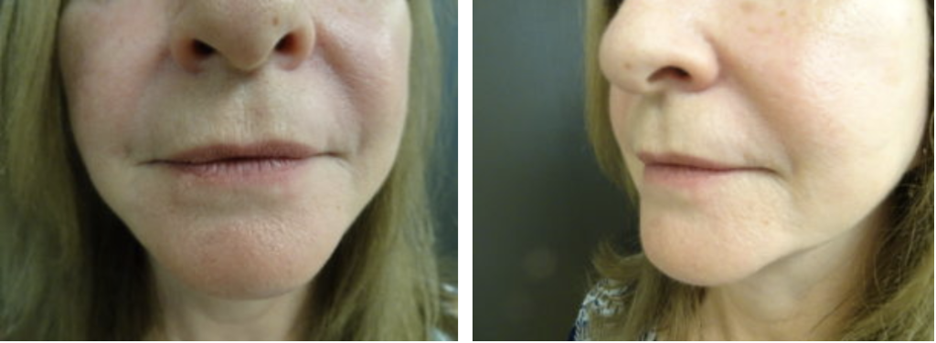 Patient before receiving Restylane® injectable filler