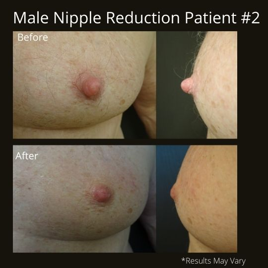 Before and after image of a male nipple reduction patient.
